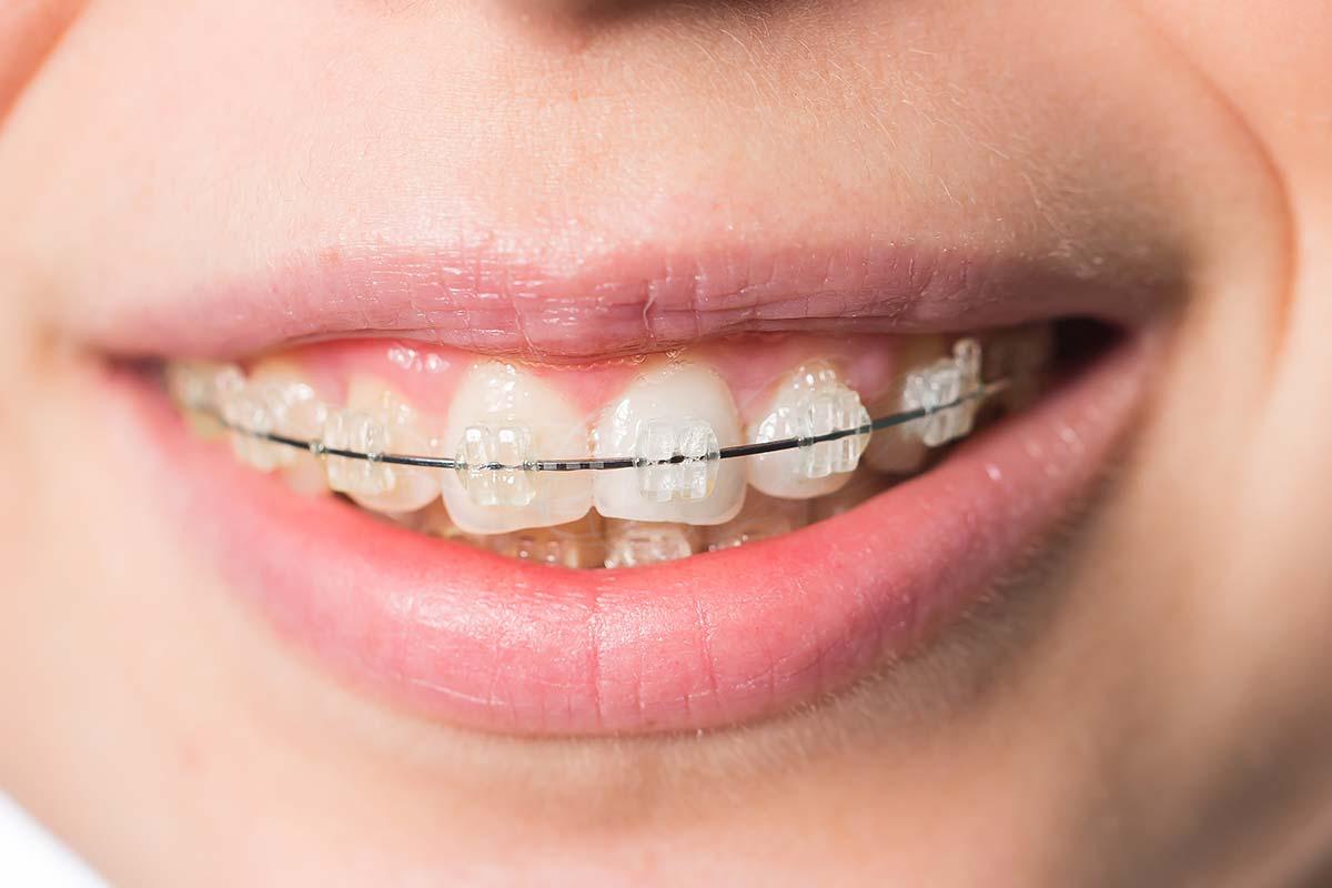 ceramic-braces-milton-ontario